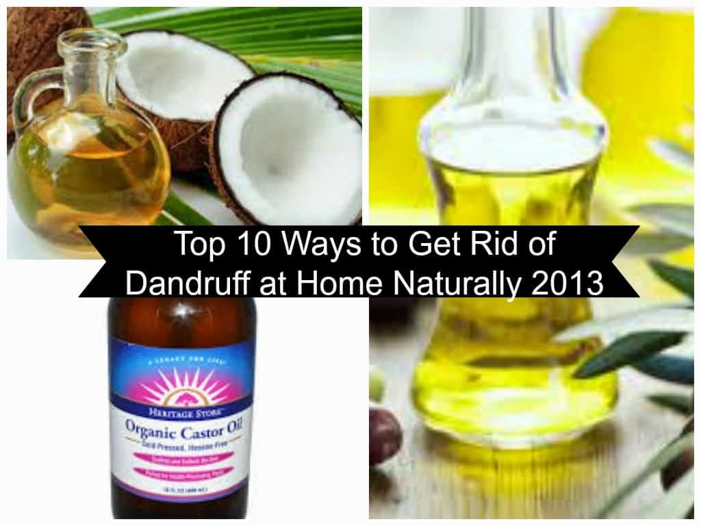 dandruff remedies