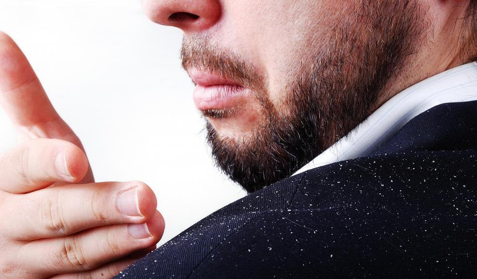 Seeing specs of dandruff on your shoulder can be quite embarrassing.