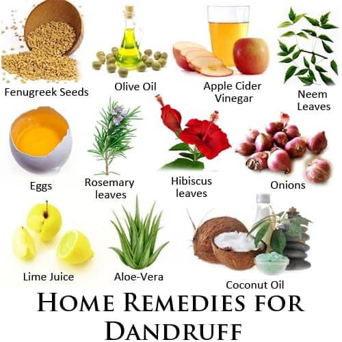 These are natural home remedies for your dandruff problems.